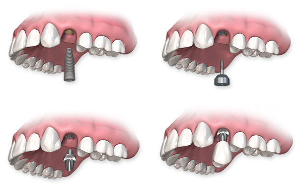 single dental implant procedure